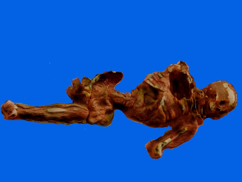 Decayed Male Skeleton Torso