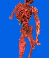 Burned Skeleton