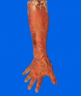Severed Zomie Arm