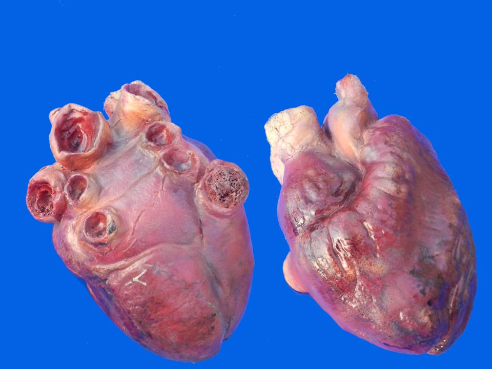 Enlarged Human Heart